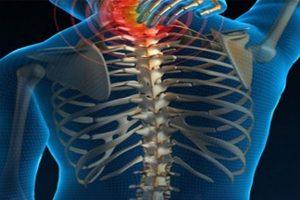 spinal Kord yaralanması, omurilik yaralanması